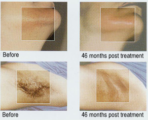 laser-hair-removal-idaho-falls-before-after