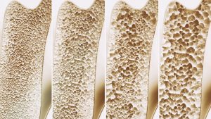 rosemark bone density osteoporosis idaho falls womens care