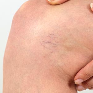 Best spider vein removal treatment in Idaho Falls at Rosemark - spider veins