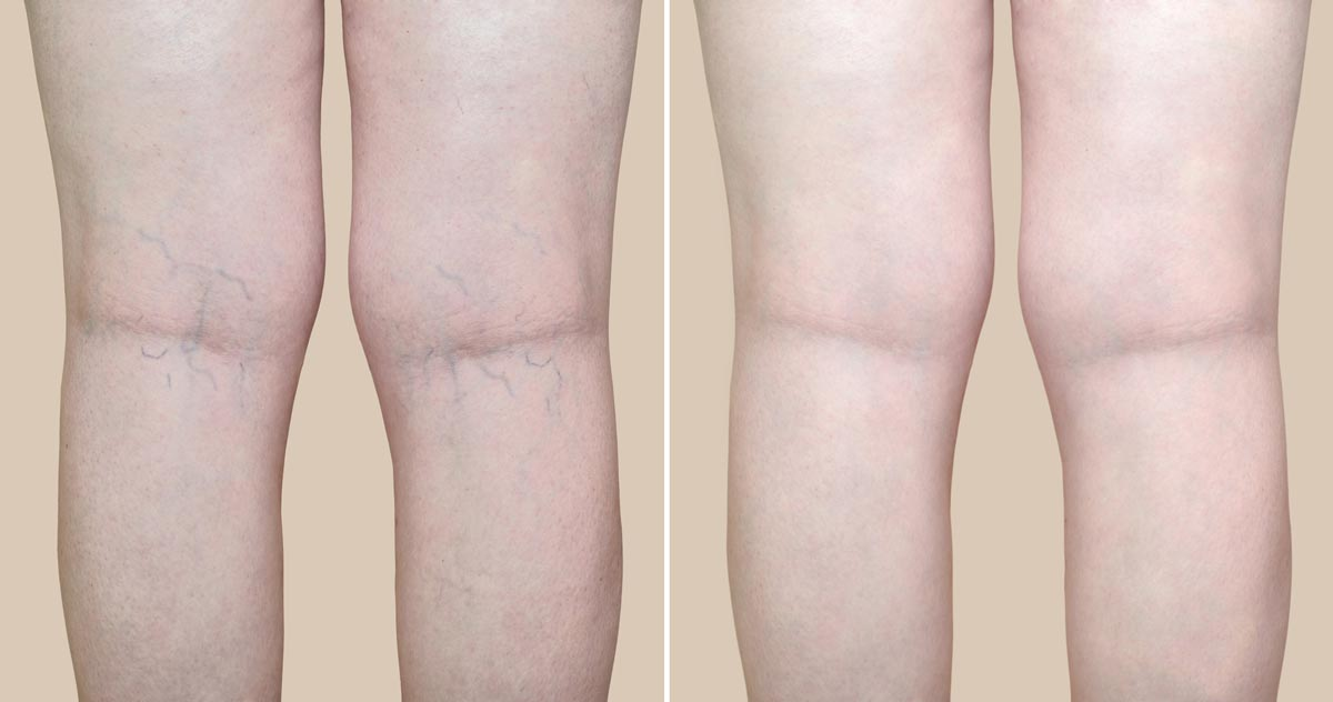 back of legs with spider veins, Before and After treatment.