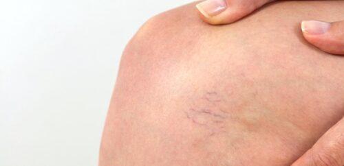 close-ip of knee with spider veins.
