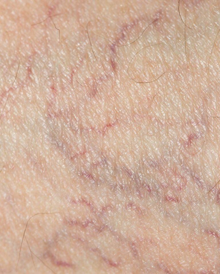 close-up of treatable spiderveins.